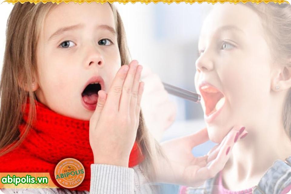 Dấu hiệu nhận biết khi trẻ bị viêm họng và nguyên nhân