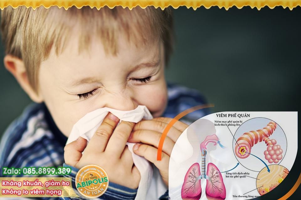 Cảnh báo - Trẻ viêm phế quản hay tái phát, sau dễ gặp vấn đề về phổi