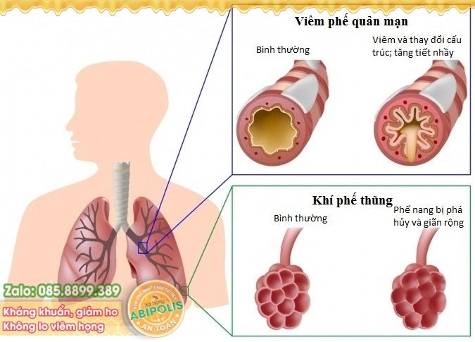 Tìm ra căn nguyên gây bệnh viêm đường hô hấp mạn tính