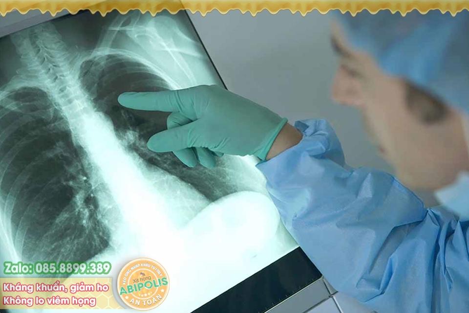 Bệnh nấm phổi, những vấn đề cơ bản cần biết