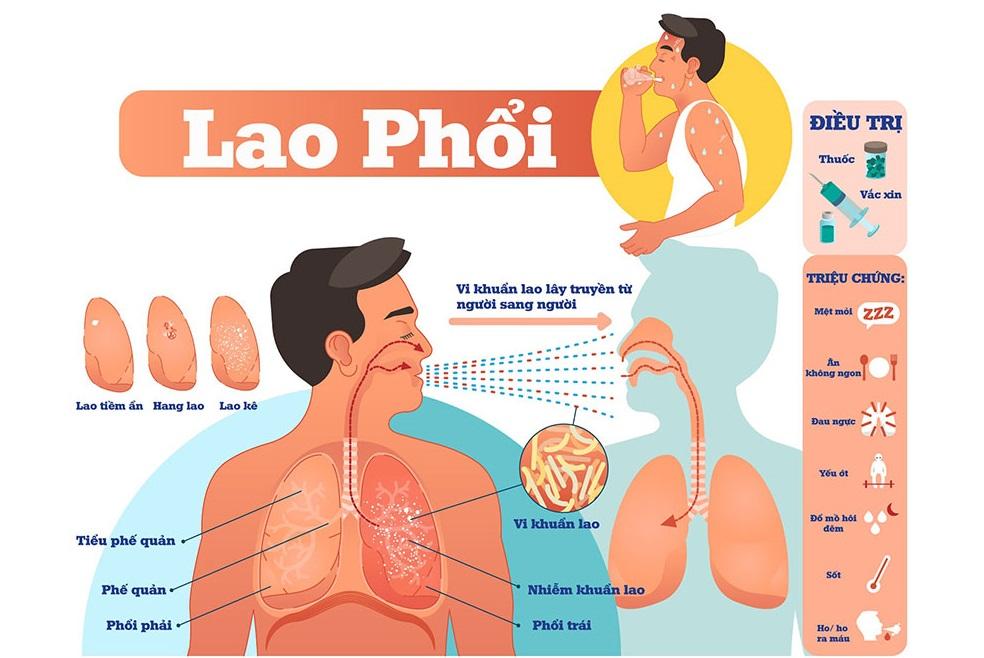 Lao phổi dễ nhầm với nhiều bệnh phổi khác