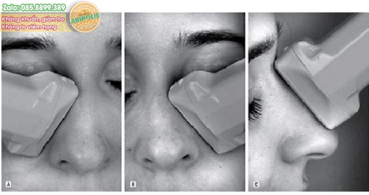 Giải pháp mới điều trị viêm mũi xoang mạn tính với sóng siêu âm